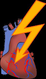 Inilah 6 Cara Unik Mencegah Penyakit Jantung Sejak Dini