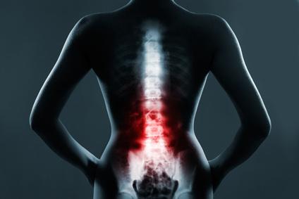 Spine And Hip Pain Texas Orthopedics