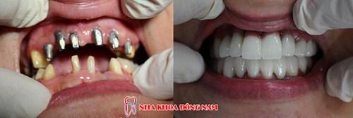 dịch vụ Trồng Cấy Ghép Implant -9