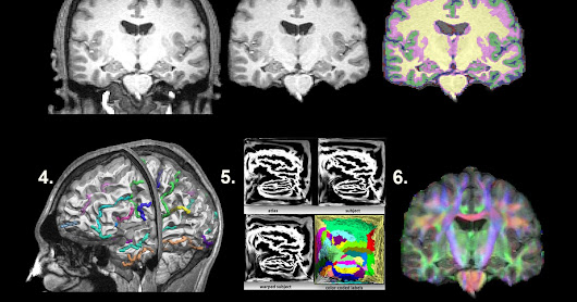 New Publication Out: Major Superficial White Matter Abnormalities in Huntington's Disease