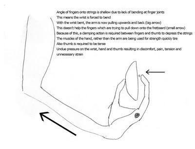 Một số mẹo phòng tránh đau cổ tay khi tập đàn guitar