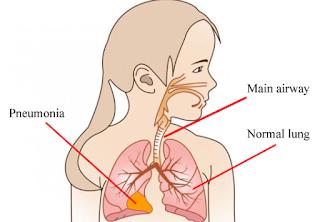 obat pneumonia