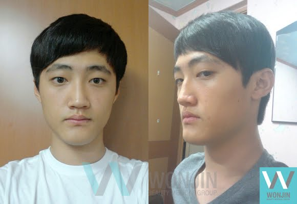 짱이뻐! - Perfect Combination of Korean Face Contouring & Two Jaw Surgery, Bye Big Chin!