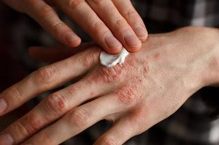 Obat gatal tradisional yang ampuh atasin gatal gatal pada sela jari