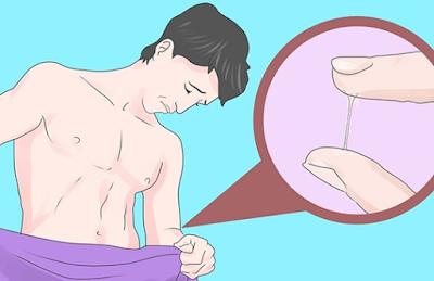 Kencing Sakit Dan Keluar Nanah Dari Penis
