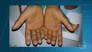 Mãe é suspeita de queimar as mãos do próprio filho de seis anos em Codó