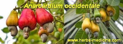 Diabetes use Anarcardium Occidentale