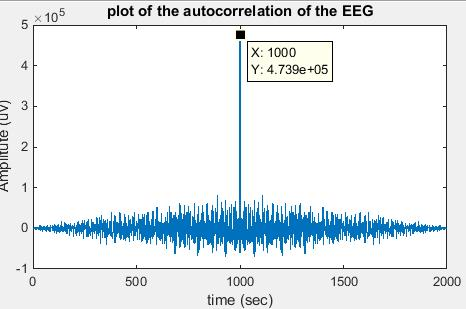 autocorrelation function matlab