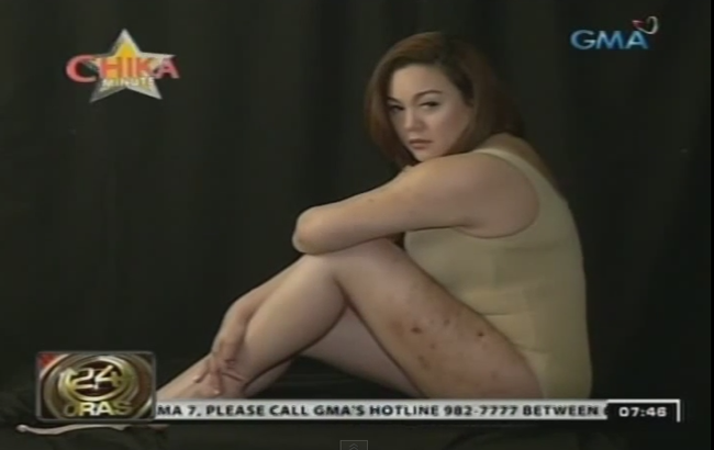 Claudine Barretto's Wounds and Bruises Shown