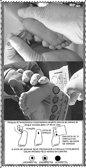 teste do pezinho, importancia e significado blog Mamãe de Salto ==> imagem retirada da internet
