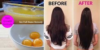 egg pack for hair