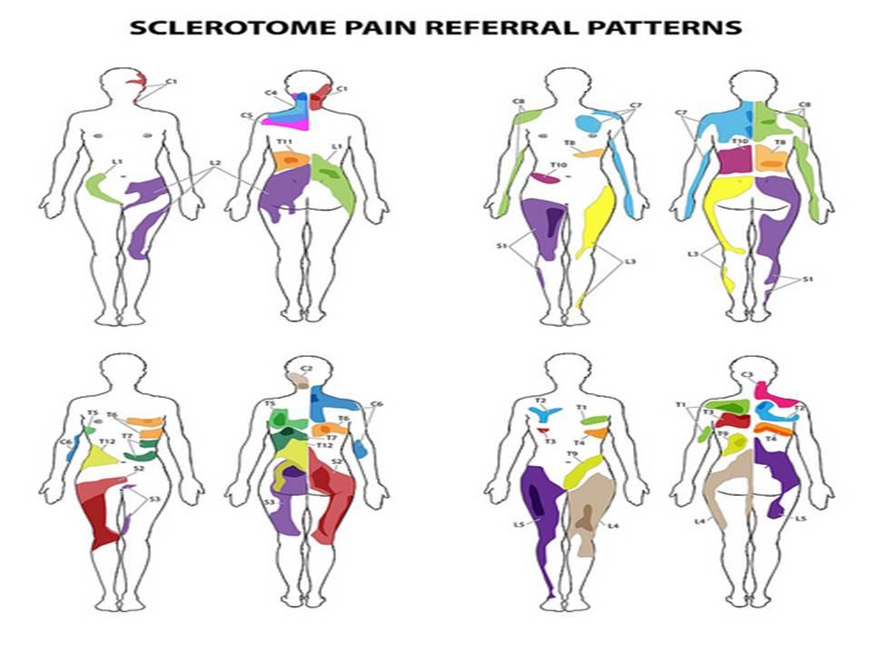 Skema Dermatom dan Sklerotom ~ artikel fisioterapi