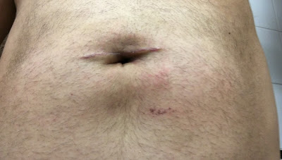 Three weeks after hernia repair at Shouldice  - front