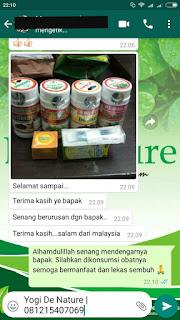 Cara Penggunaan Obat Kutil Kelamin atau Jengger Ayam De Nature Indonesia
