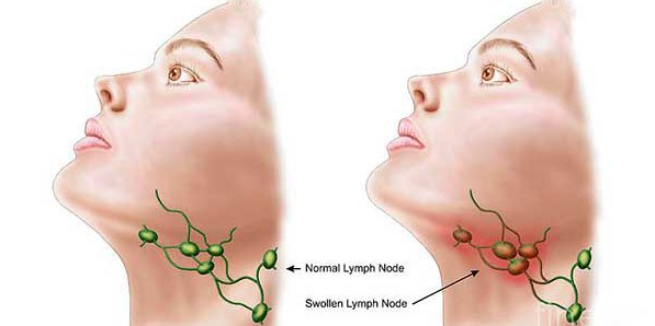 Beware of signs symptoms of cancer of the lymph nodes swollen before too late
