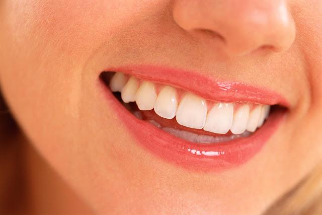 Kulit Pisang dan 6 Bahan Ini Bikin Gigi Putih Bersinar