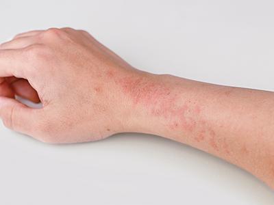 http://dermatologist-skin-clinic.com/skin/eczema/