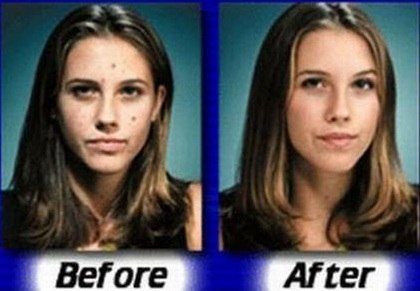 Spironolactone Weight Loss Acne