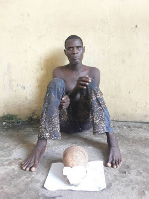 Police Arrest Man In Possession Of Fresh Human Skull in Lagos (Graphic Photos)