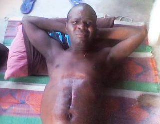 x - Photos: Man brutally tortured for weeks, thrown down from 3 storey building in PH on alleged order of Navy Commodore, cries for justice