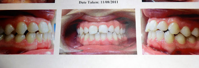 braces albuquerque before photo