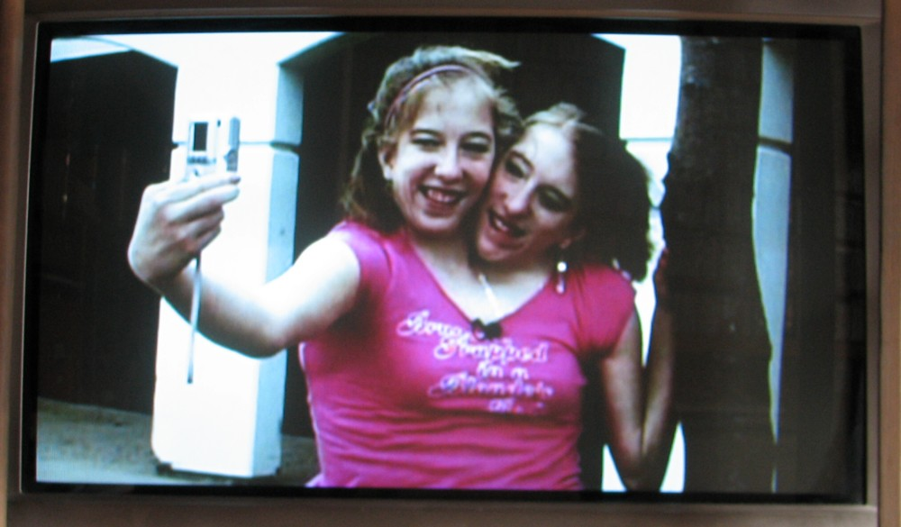 Conjoined twins abby and brittany engaged |Daily Pictures