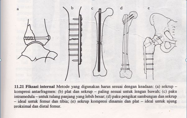 Fraktur der Patella oder Kniescheibenfraktur