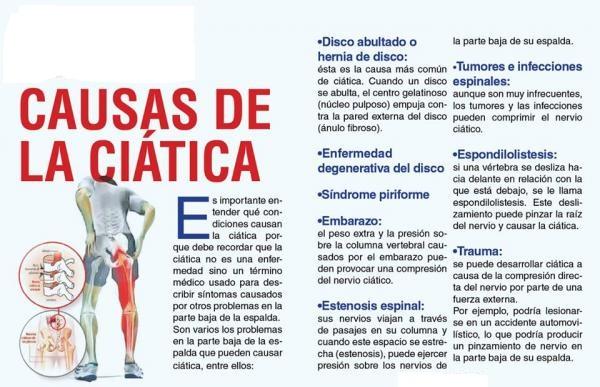 que medicamento tomar para dolor de nervio ciatico