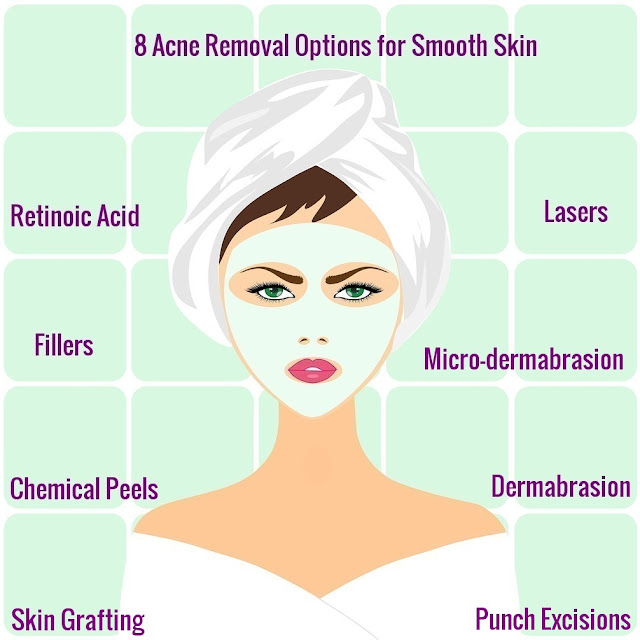 8 Acne Removal Options