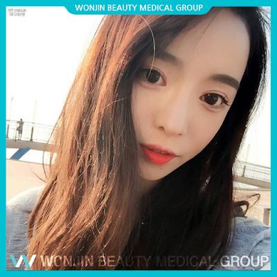 Temukan Angle Terbaik Dengan Operasi Hidung Wonjin