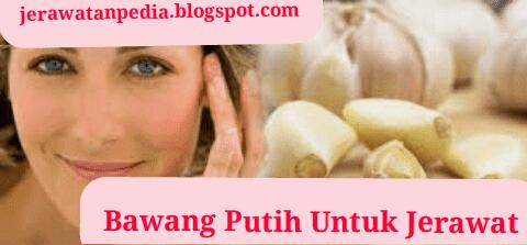 Cara Mengobati Jerawat Dengan Bawang Putih