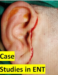 Case studies in Oral Health Science, Case studies in ENT, Case Report in ENT, Gap-arthroplasty of Tempromandibular Joint Ankylosis, Feasibilty of Preplanned Computer Guided Gap-arthroplasty, Case Report in Maxillofacial Surgery