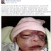Lady Narrates How Her Baby Was Born Badly Deformed Due to Self-Medication