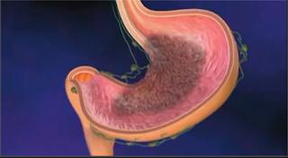 Cancer de l'estomac;symptômes,Pronostic et traitement