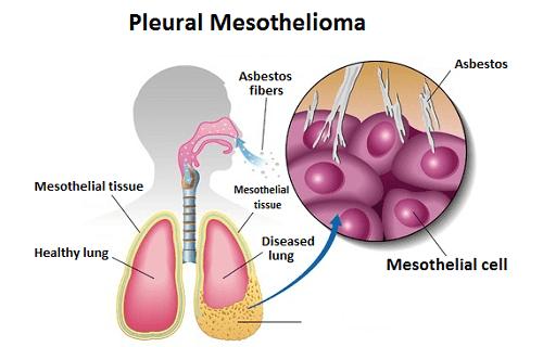 pleural mesothelioma mesothelioma masterthe evolution of this process causes