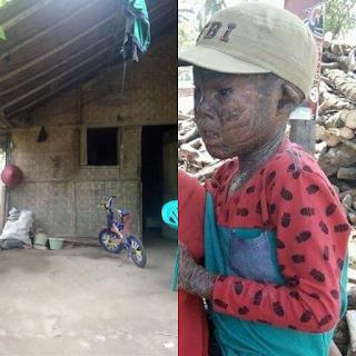 Maulana penderita Sakit DERMATITIS Membutuhkan Rumah Layak Huni