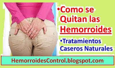 Como-se-quitan-las-hemorroides-externas-internas-tratamiento-natural-remedios-caseros