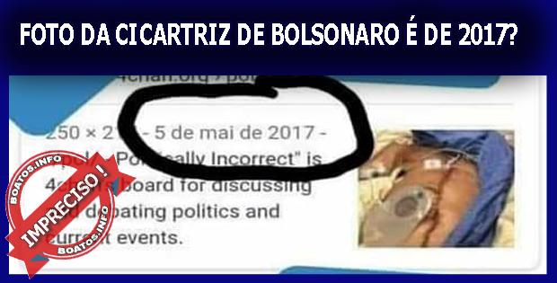 Foto da Cicatriz de Bolsonaro é de 2017 - Mentira