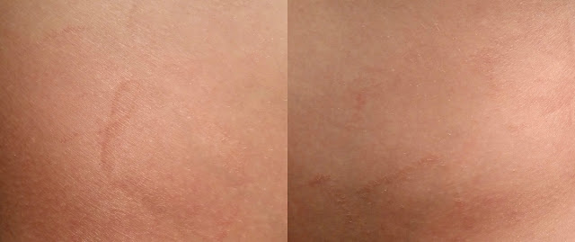 A two-photo collage of two different skin sites where the sticky dots have damaged the skin, leaving square marks.