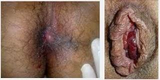 Gambar ramuan alami untuk penyakit ambeien
