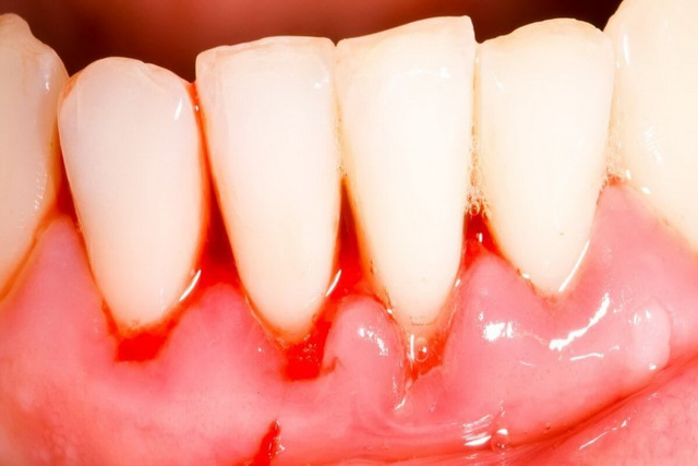 elimina simplu parodontoza