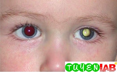 Leukocoria in the left eye of this infant with retinoblastoma