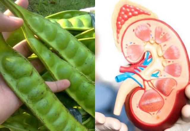 Meski Doyan, Jangan Kebanyakan Makan Petai! Karena 3 Penyakit Ini Bakal Mengintai Anda