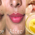10 Tricks To Lighten Dark Lips, Lip Line And To Get Beautiful, Smooth Soft Pink Lips