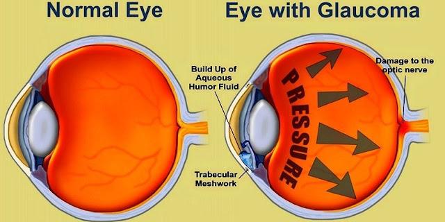 Glaukoma: Pengertian, Jenis, Pemeriksaan dan Pengobatannya