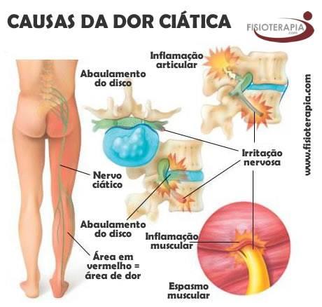 Dor nas lombar e pernas nádega