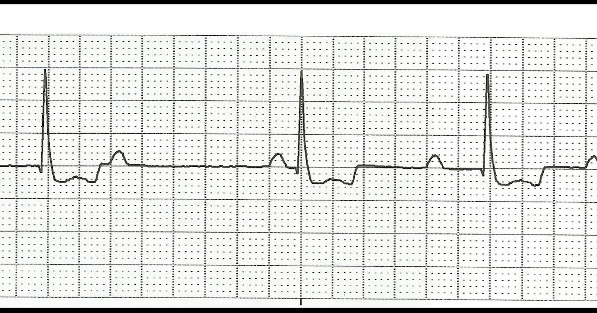 Float Nurse: ECG Rhythm Strip Quiz 107