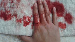 pertolongan pertama pendarahan