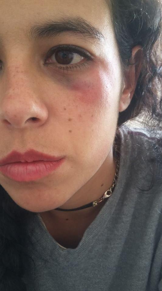 Las lesiones. FOTO: Facebook