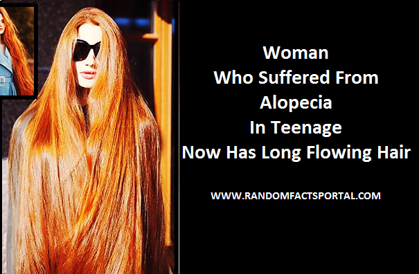 Woman Who Suffered From Alopecia In Teenage, Now Has Long Flowing Hair